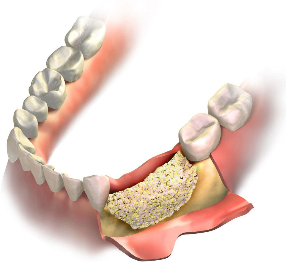 Do You Need Bone Grafting for Dental Implants?