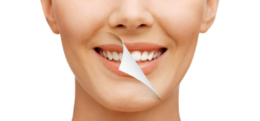 Teeth Whitening Downey CA